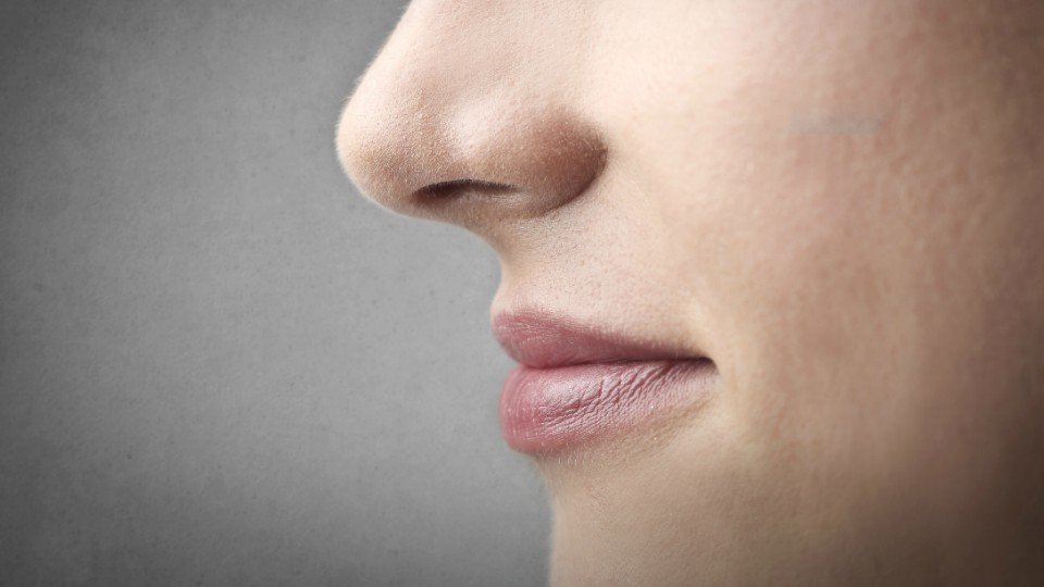 Cold Sores (Mouth Herpes)