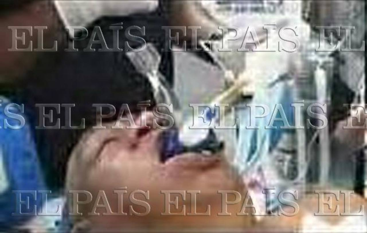 Diario El País publica foto de Hugo Chavez intubado