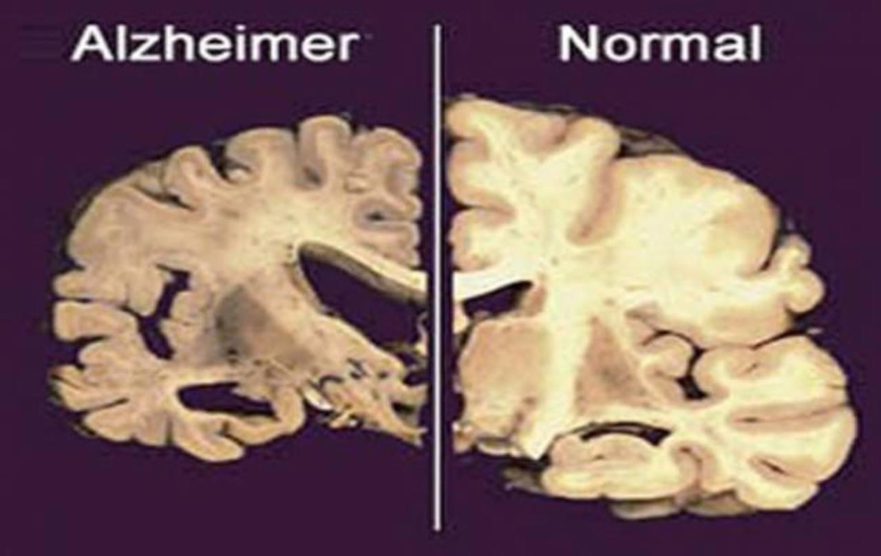 El Alzheimer supone un deterioro de la memoria, los médicos buscan frenarlo.