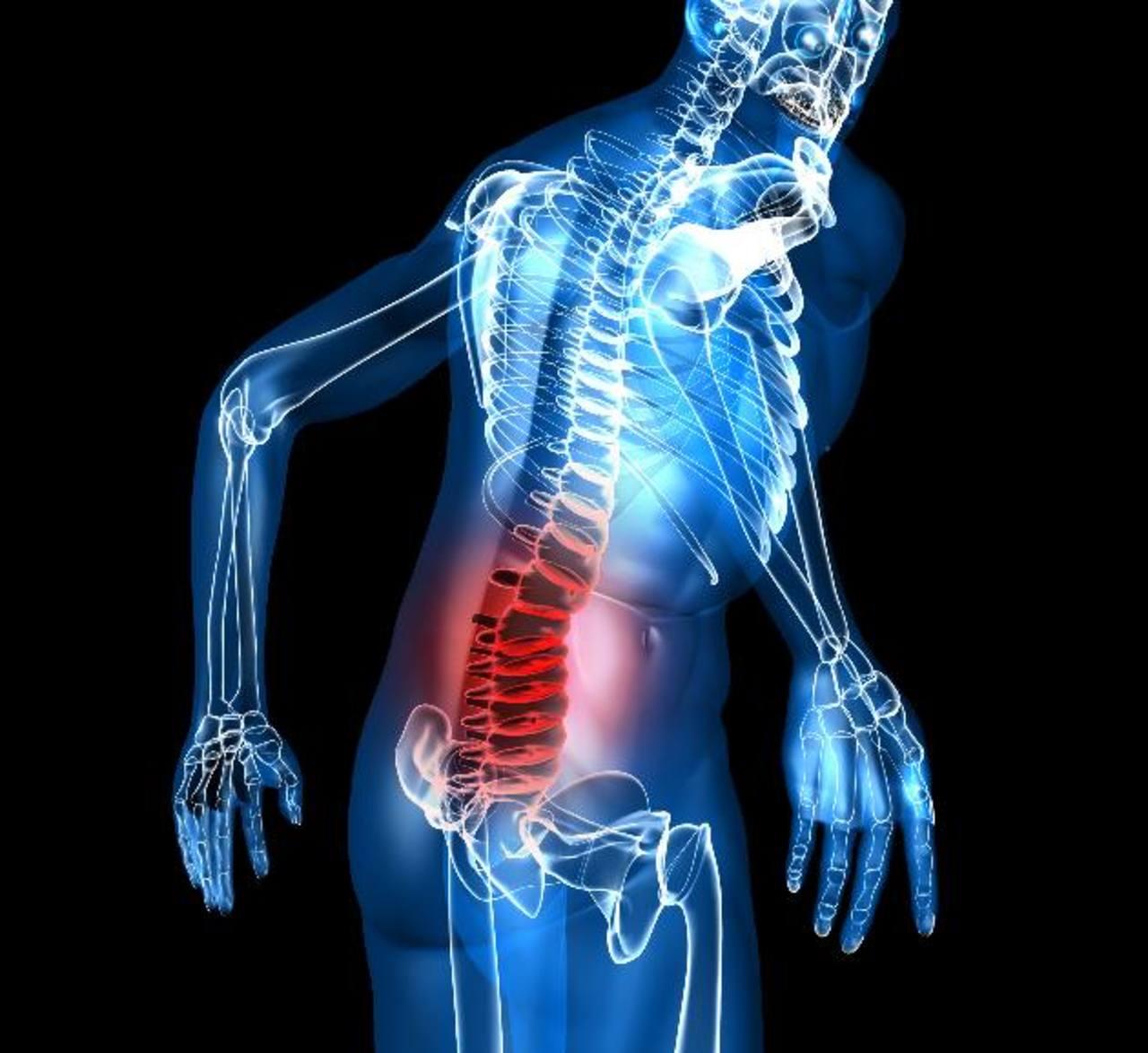 Lumbago, más que un simple dolor en la espalda baja | elsalvador.com