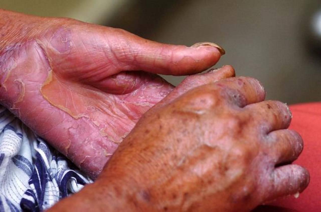 La mayoría de las personas con lepras esconde su diagnóstico. Temen el rechazo. Foto EDH / ARCHIVO