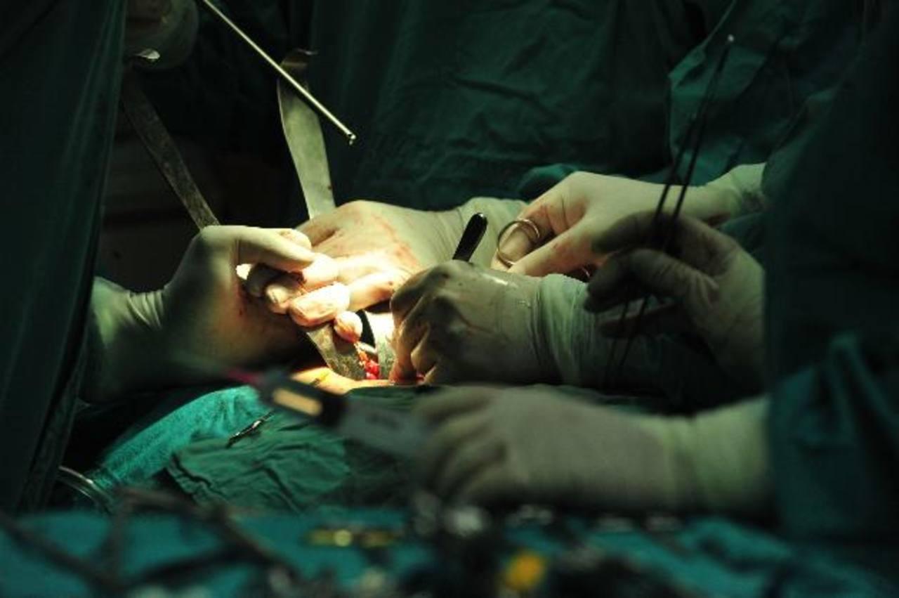 Médicos del hospital Bloom realizan un trasplante de riñón.