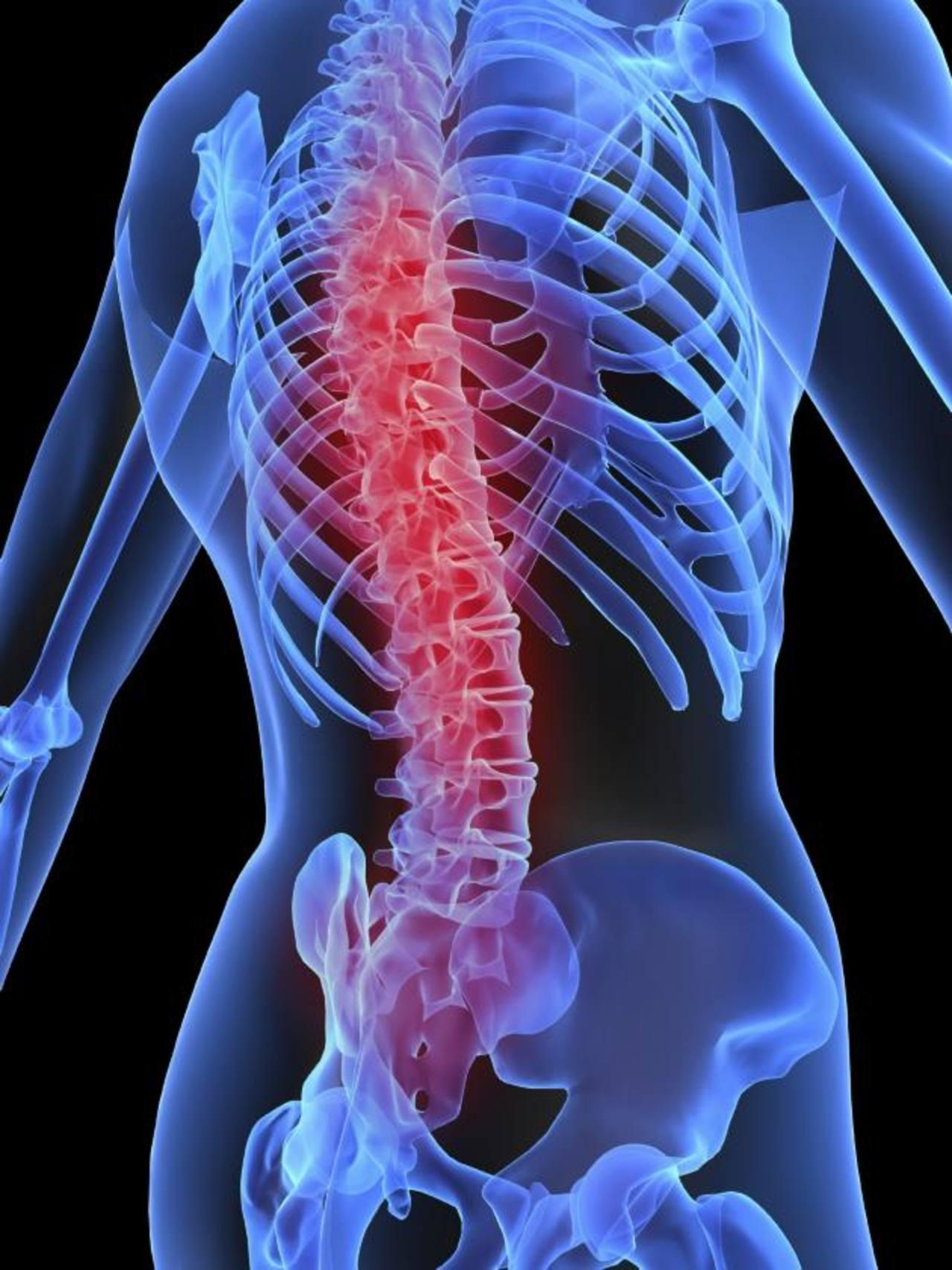 El aumento del riesgo de fracturas en los pacientes con diabetes tipo 2 sería multifactorial.