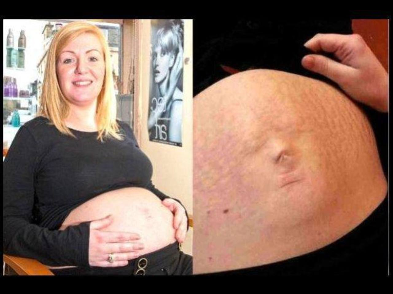 Rostro de bebé parece reflejarse en panza