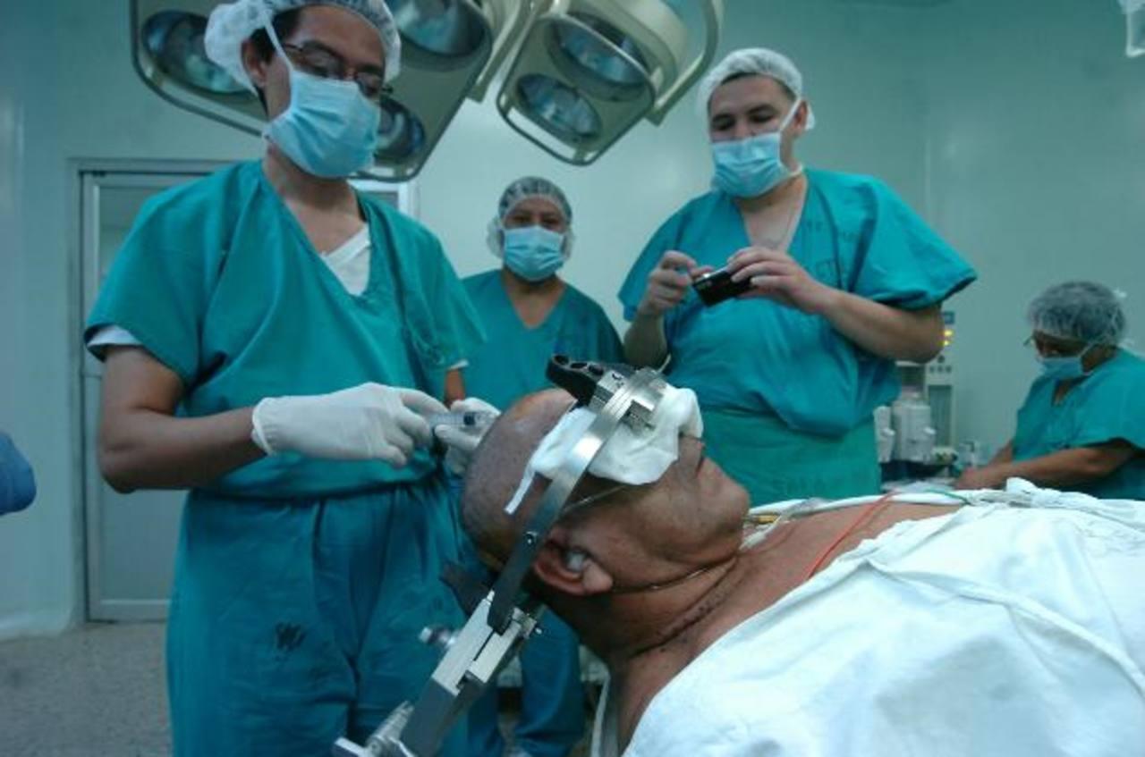 Médicos del hospital nacional Rosales operan a un hombre con un tumor en el cerebro con el equipo de estereotaxia. foto EDH /