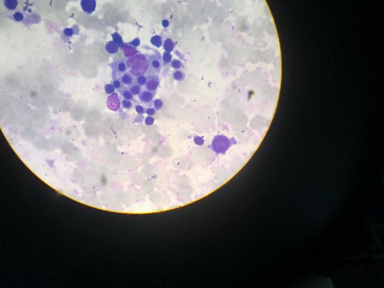 En el aspirado de la médula los especialistas detectan el proceso de histiofagocitosis. foto EDH