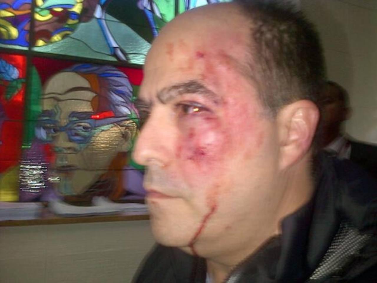 A la izquierda, la diputada opositora María Corina Machado quien fue agredida ayer. A la derecha, el también diputado opositor Julio Borges, quien resultó severamente golpeado en el rostro. foto edh / efe