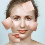 Manchas en la cara, un mal prevenible