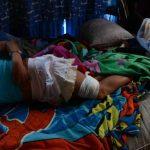 Una adolescente, de 15 años, resultó herida por una bala que atravesó la pared de su casa. La joven se recupera en su vivienda. Fotos EDH / miguel villalta