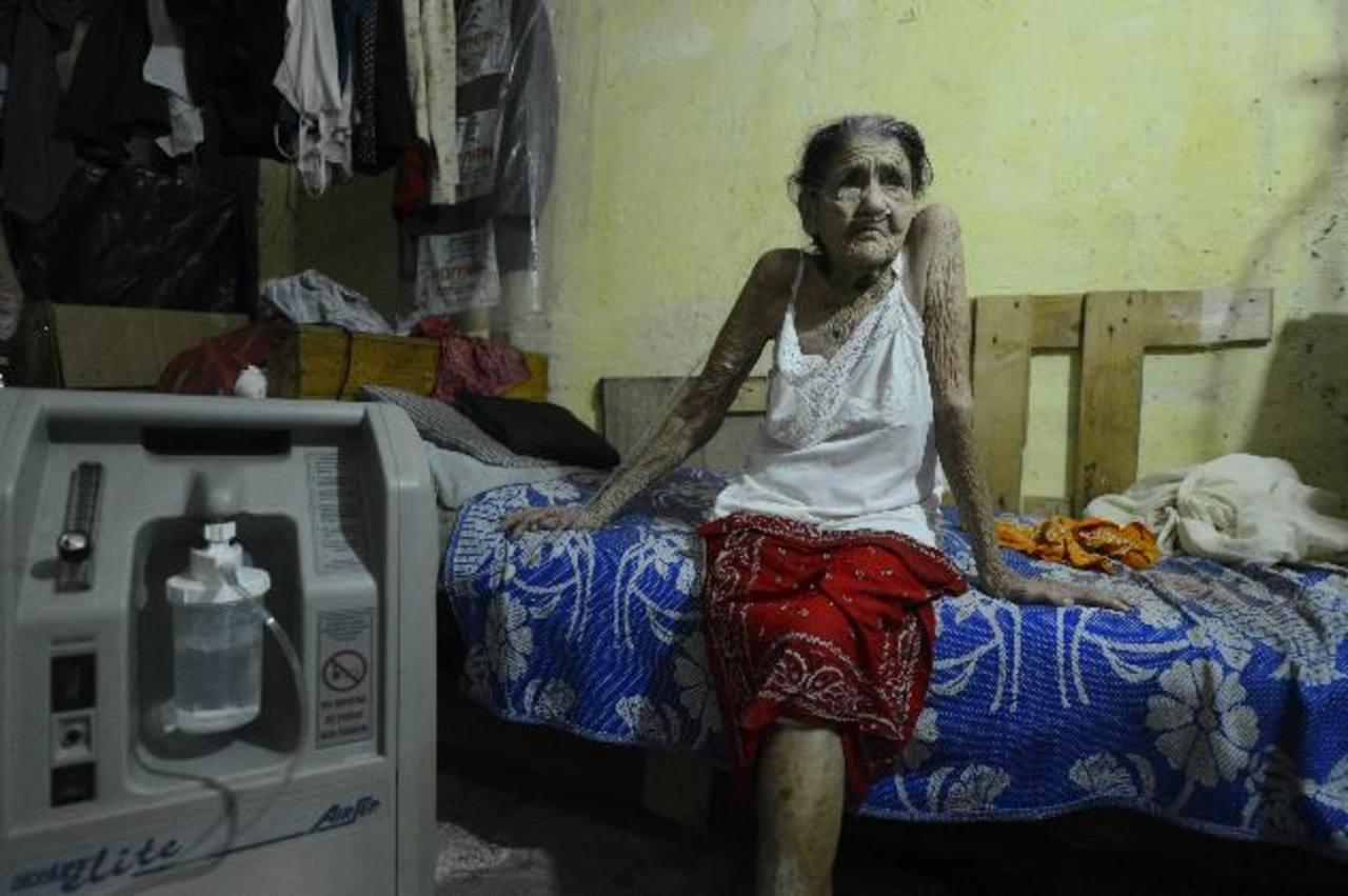 Pacientes con enfermedad pulmonar sin medicamento