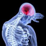 Los dolores de cabeza intensos y súbitos son una señal de alerta. Si esto va acompañado de mareos, debilidad en manos y piernas y falta del habla hay que buscar ayuda.