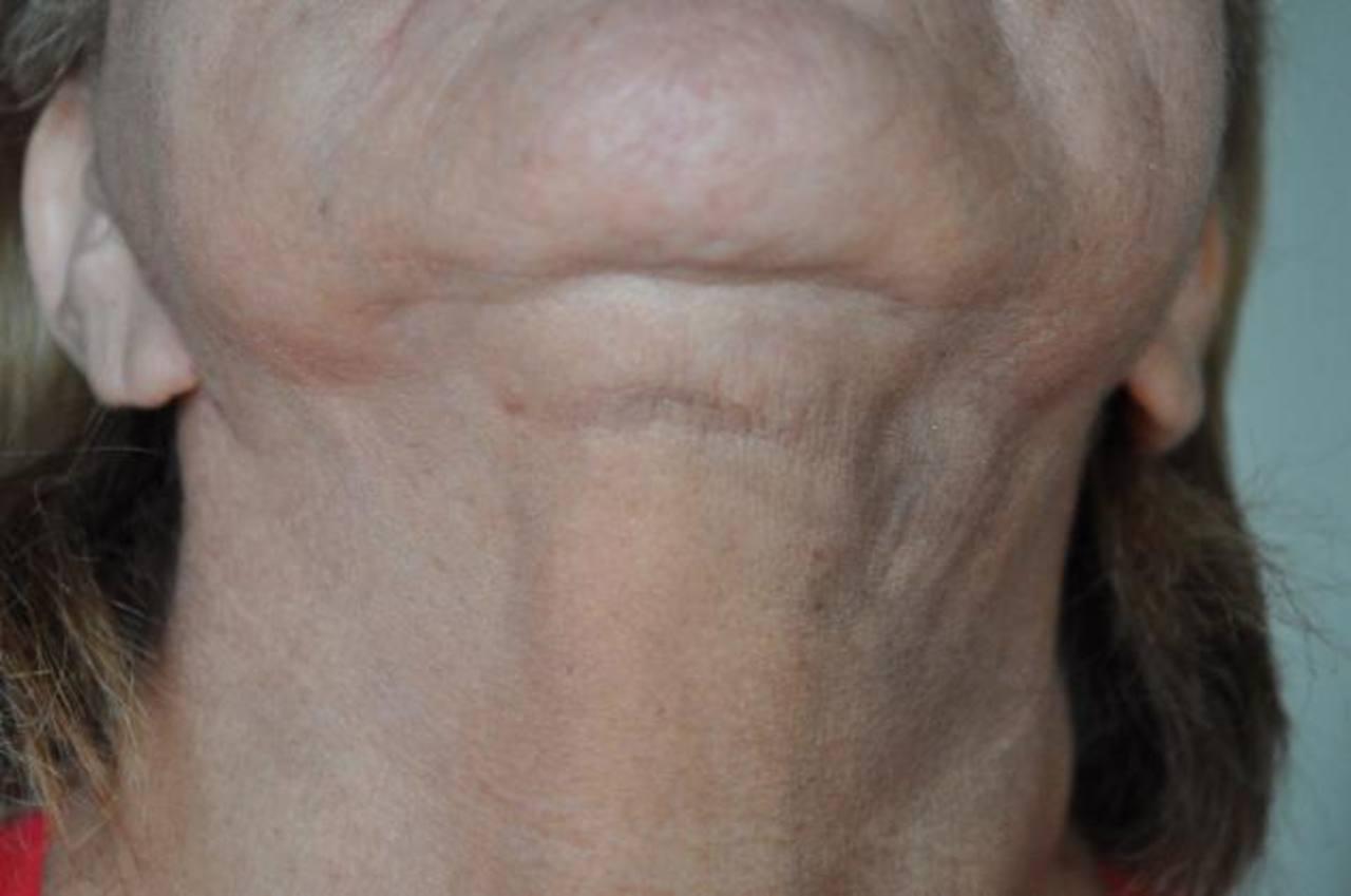 La liposucción no solicitada le dejó esta cicatriz. Foto EDH /