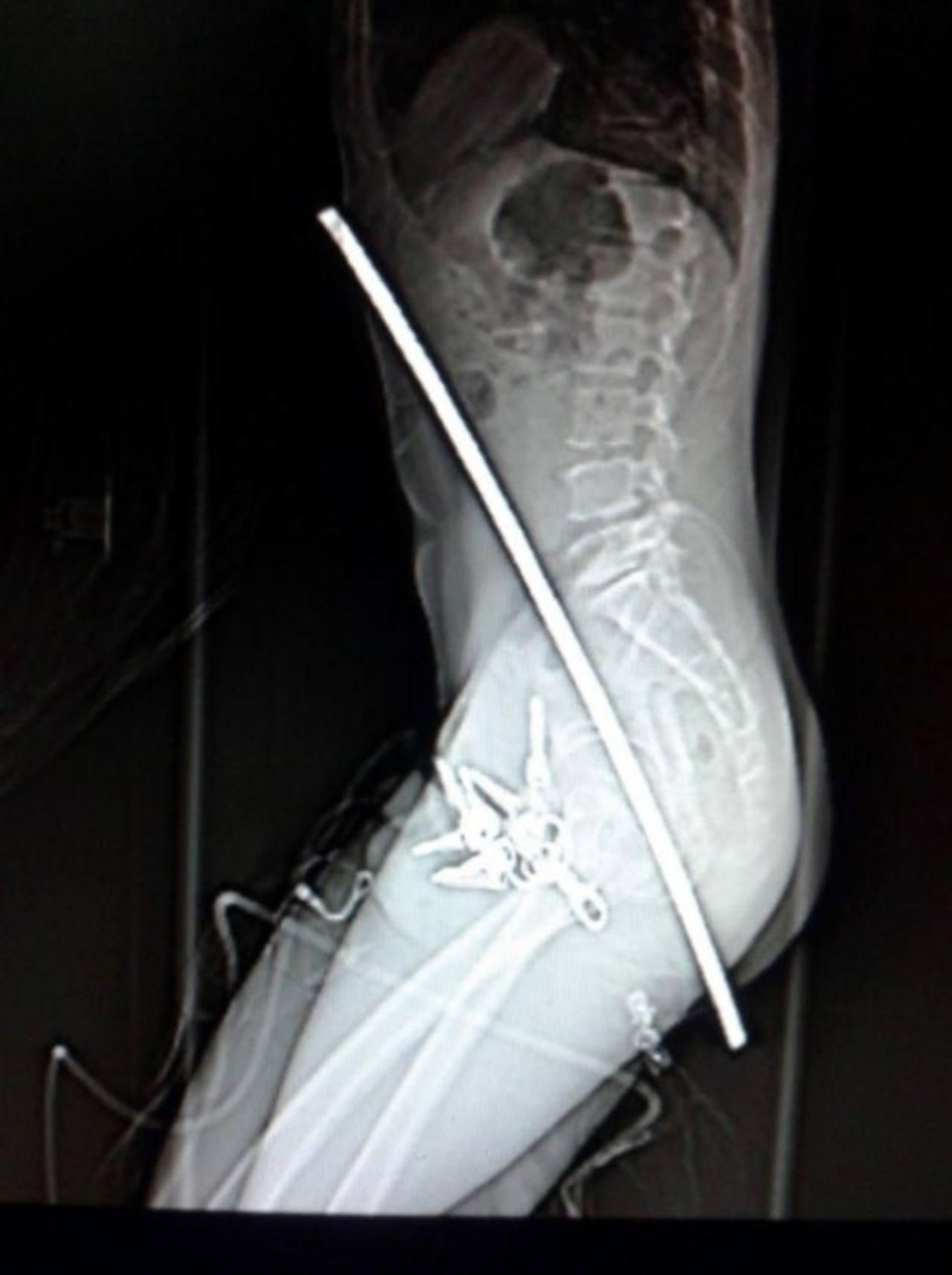 Trabajador cae de andamio y se incrusta barra de metal