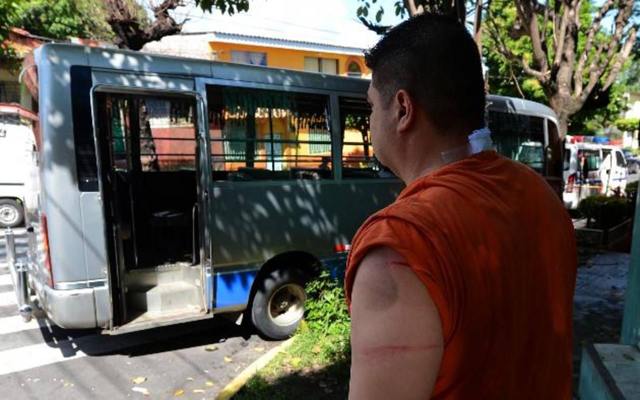 El ataque contra el microbusero se produjo en la 10a. Avenida Norte y 25a. Calle Oriente.