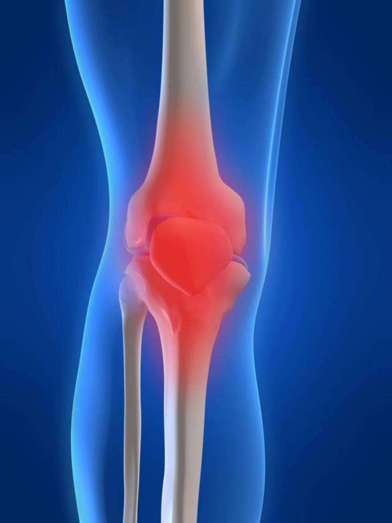La osteoartritis de la rodilla es de las más comunes, puede afligir a casi una de cada dos personas en algún momento.