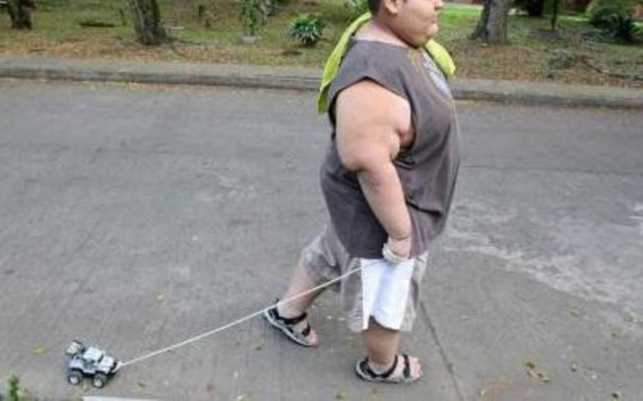 Los adolescentes obesos tendrían menos masa ósea para su peso corporal, según revela un estudio de Brasil. Foto/ Archivo