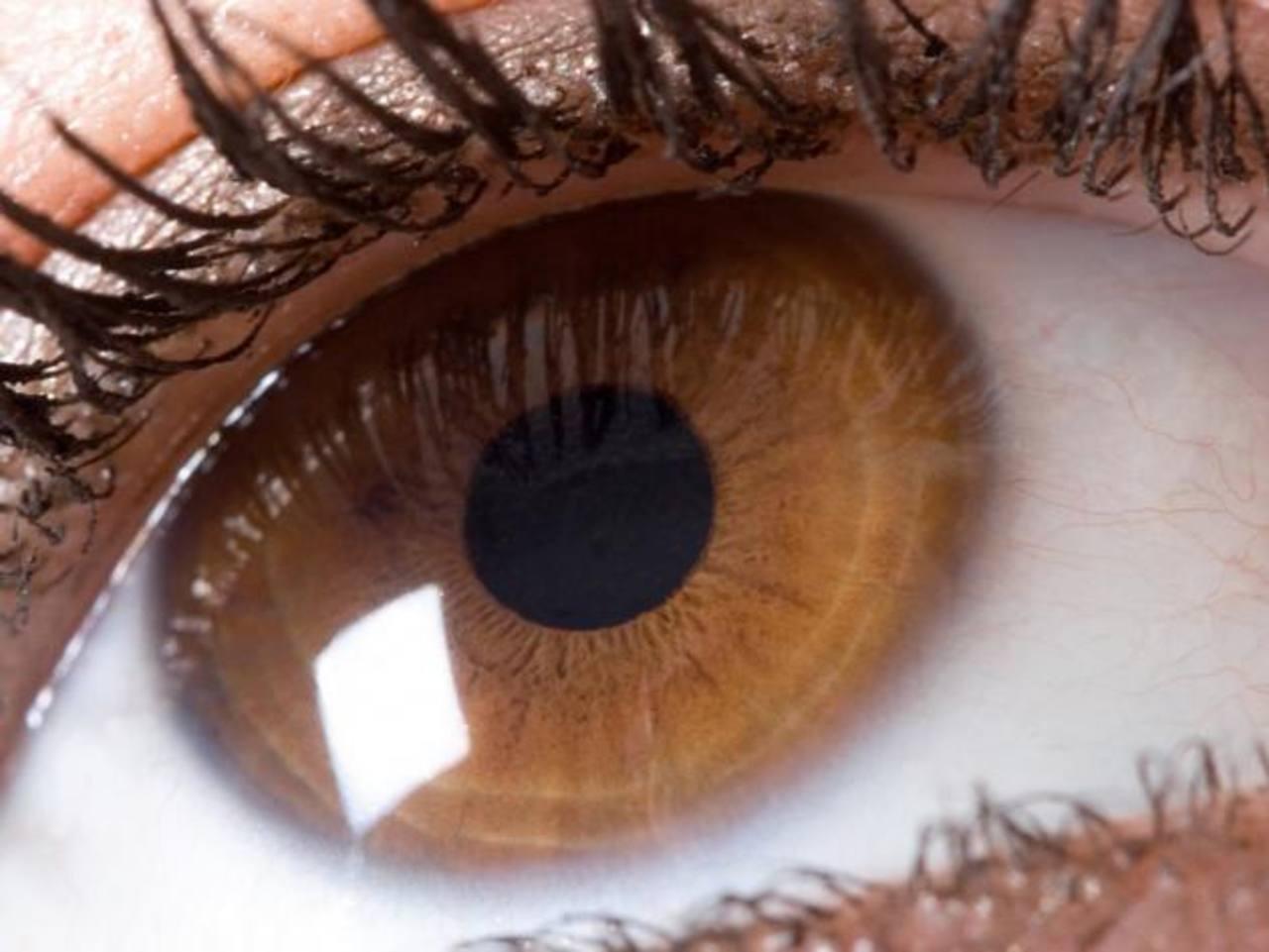 La presión intraocular sube significativamente en ambos ojos durante la diálisis. foto edh