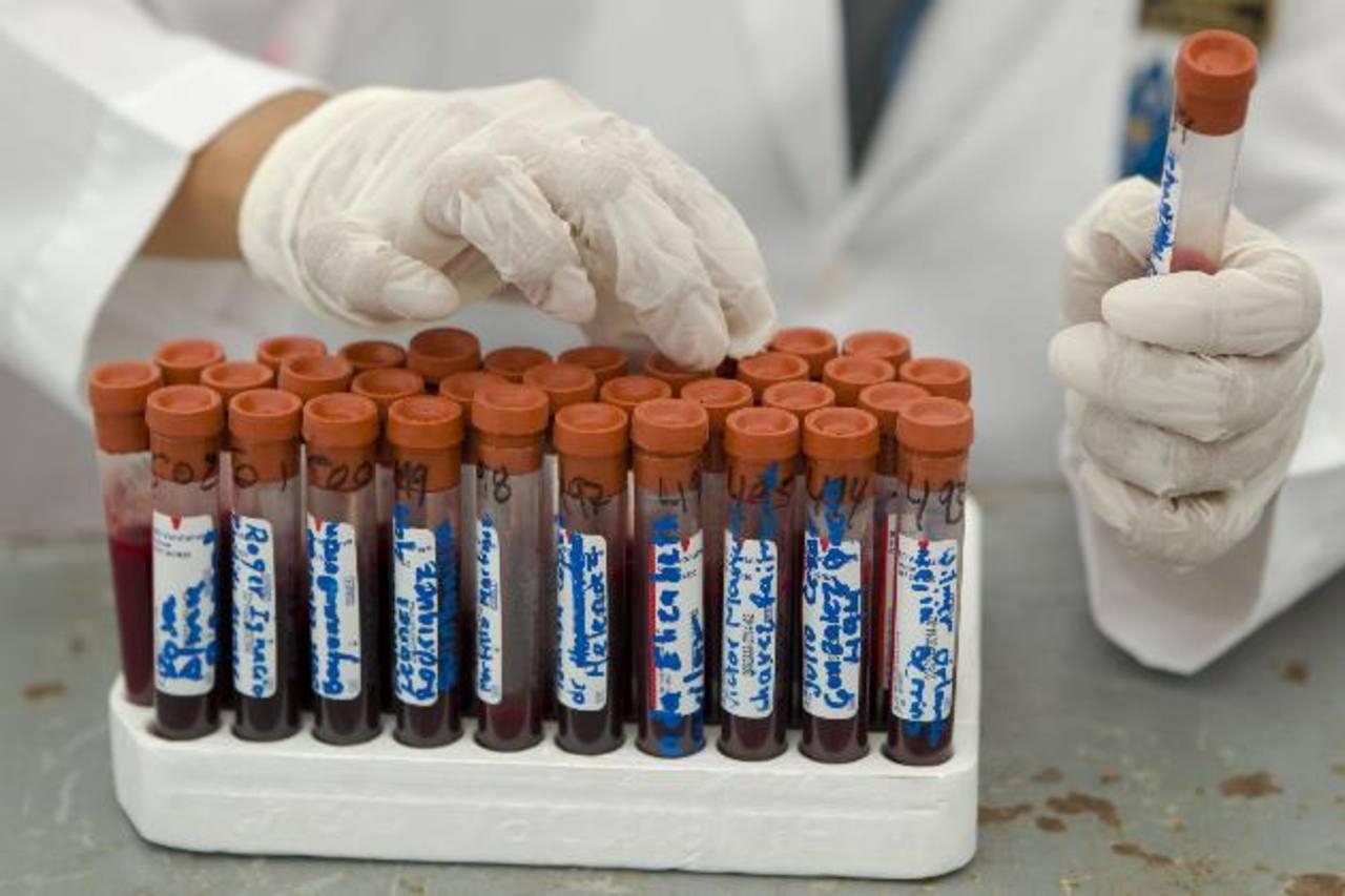 La reducción en el presupuesto para el tratamiento del VIH pondría en riesgo la vida de unos 7 mil pacientes, indicó el MCP-ES. Foto/ Archivo