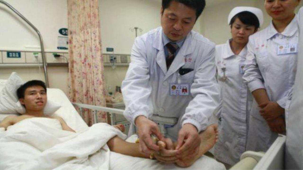 Médicos chinos injertan mano en tobillo