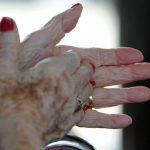 El Alzheimer afecta las partes del cerebro que controlan los pensamientos y actividades cotidianas.