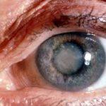 Este es el primer estudio que investiga si dejar de fumar tiene algún efecto sobre la condición ocular, por lo que es considerado de mucha utilidad. foto EDH