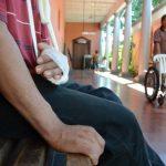 Jesús, el joven que sufrió el 70 por ciento de amputación de la mano derecha descansa en una de las bancas del hospital de Sonsonate. Foto EDH