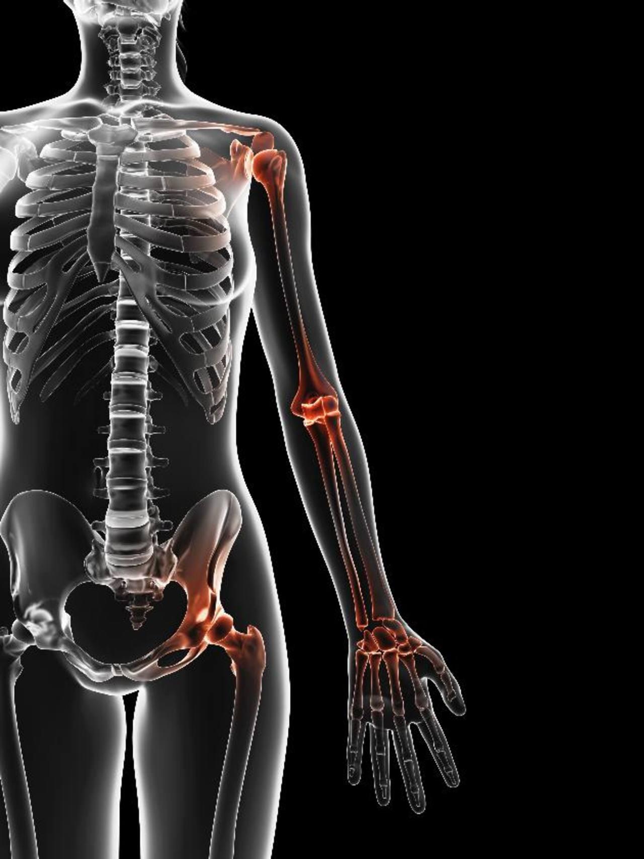 Bursitis: inflamación que inmoviliza articulaciones