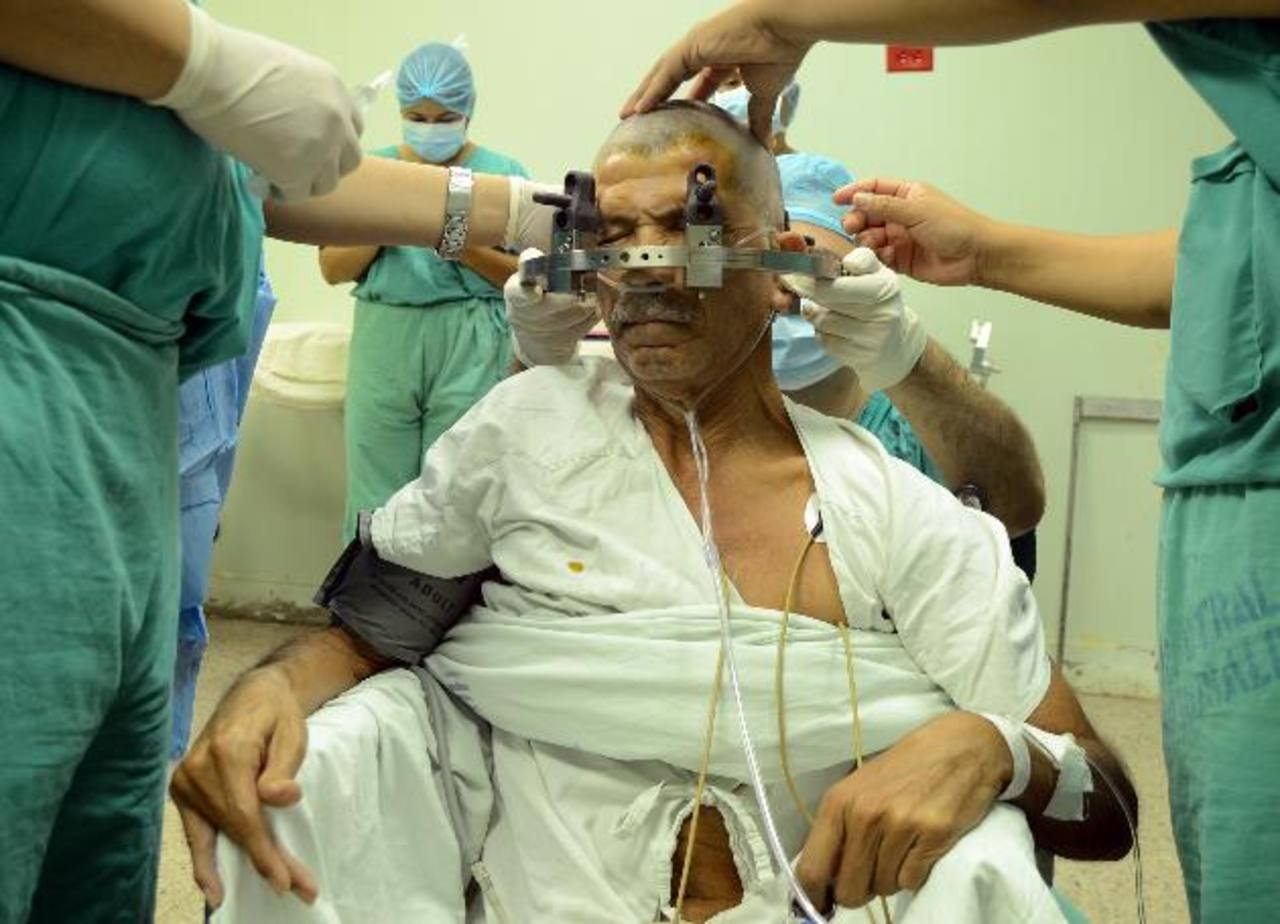 José Remberto Landaverde en el momento en el que le realizan la cirugía para tratar el Parkinson. Foto EDH/Ericka chávez