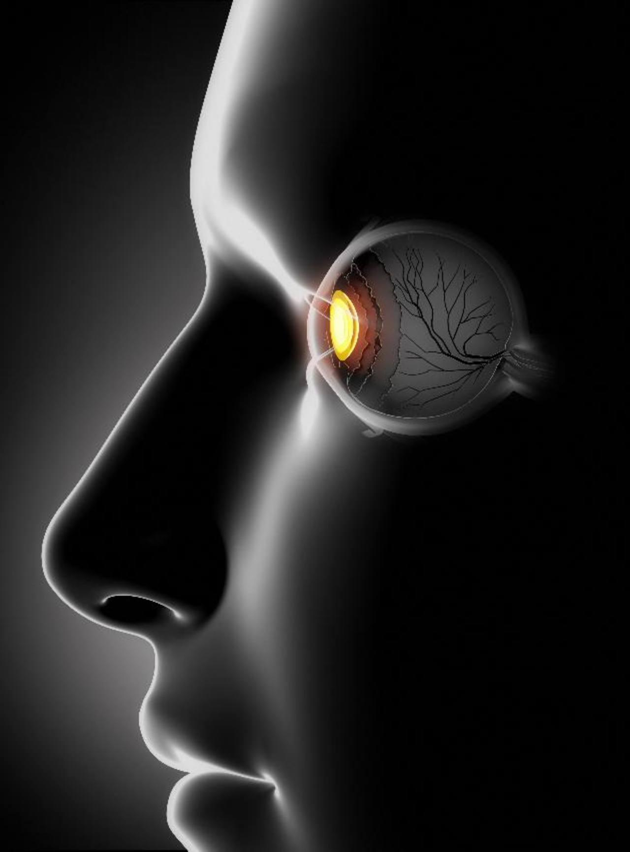 Glaucoma: no se cura, pero se detiene