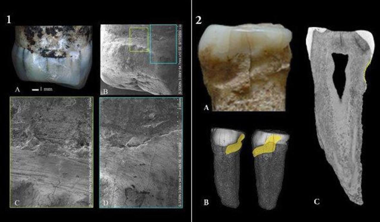 El Homo erectus ya usaba palillos para su higiene bucal
