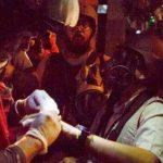 Fotorreportero de EFE, Miguel Gutiérrez, herido por perdigones en Venezuela. Foto tomada del SNTP