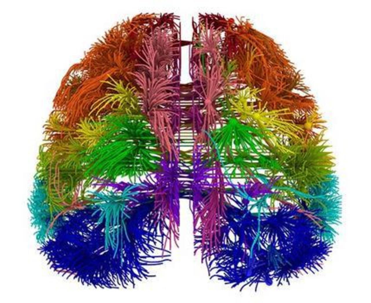 Conexiones de diferentes áreas corticales del cerebro del ratón. foto edh/ ap