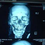 Una imagen de la lesiones que presentaba la paciente en el rostro. Foto EDH
