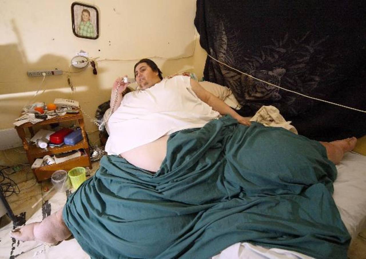 Muere Manuel Uribe, hombre más obeso del mundo en 2007