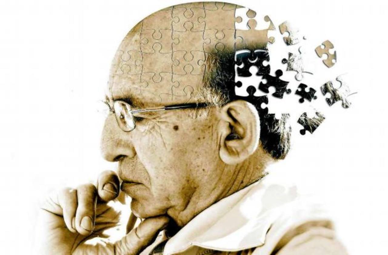 Novedosa técnica para prevenir el Alzheimer