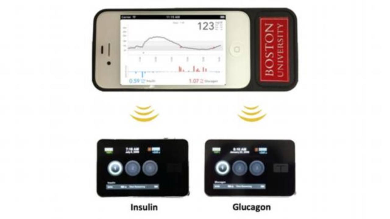 El dispositivo fue desarrollado por el Hospital General de Massachusetts y la Universidad de Boston