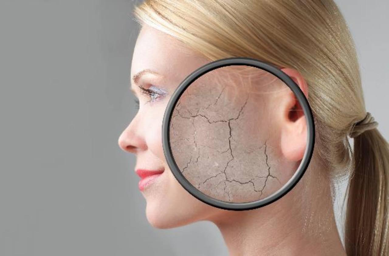 En el fumador, las arrugas se ven más profundas porque la piel no tiene tanto colágeno debido al mal aporte sanguíneo.