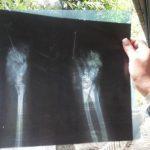 La radiografía muestra la parte afectada de uno de los miembros inferiores de Angela.