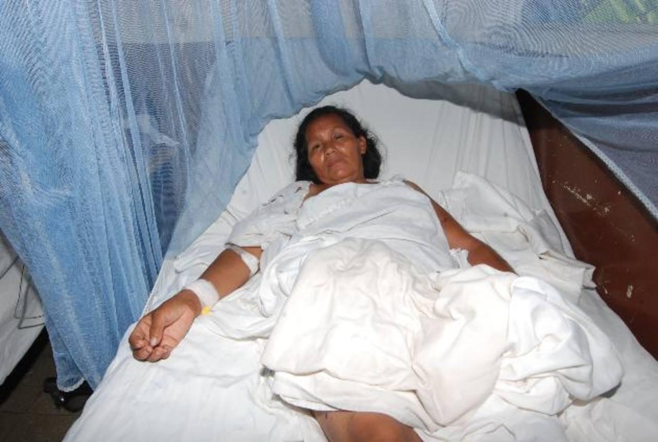 Marta Elvira Hernández, de 48 años, permanece ingresada en el hospital de Chalchuapa. fotos edh / cristian Díaz
