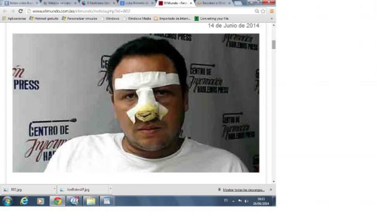 Roberto de Jesús Guerra, director y fundador de Hablemos Press, fue atacado el miércoles. foto edh / tomada de elmundo.com.bo