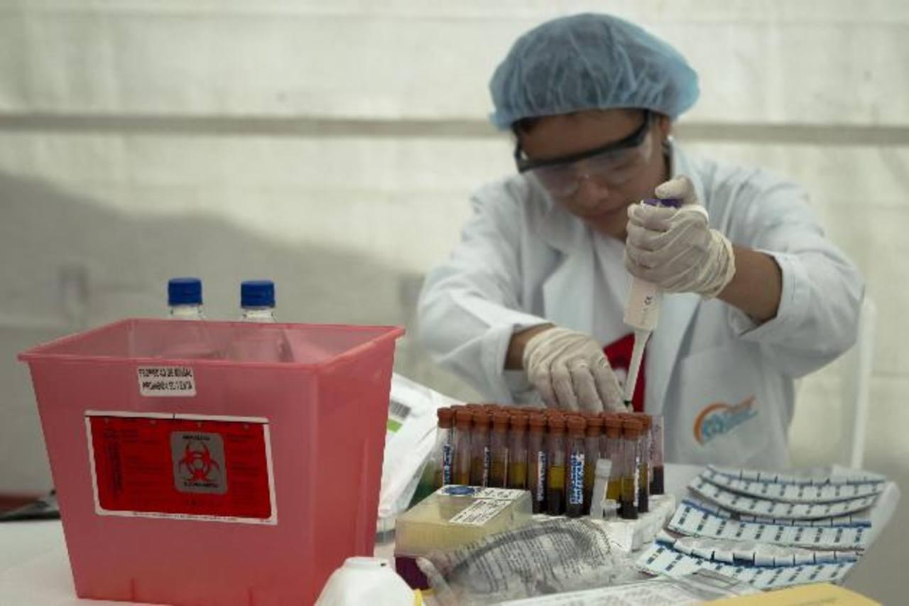Una trabajadora del Ministerio de Salud analiza pruebas para la detección del VIH. foto edh / archivo
