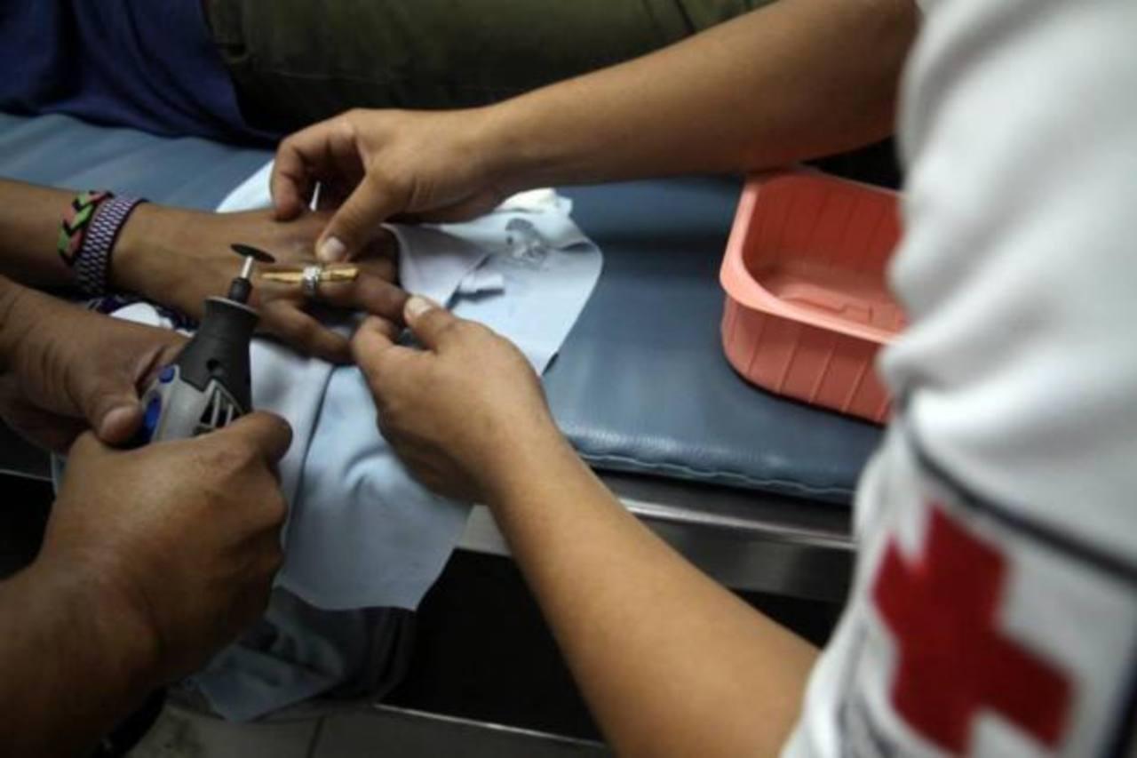 Los socorristas tuvieron que cortar el anillo al paciente.
