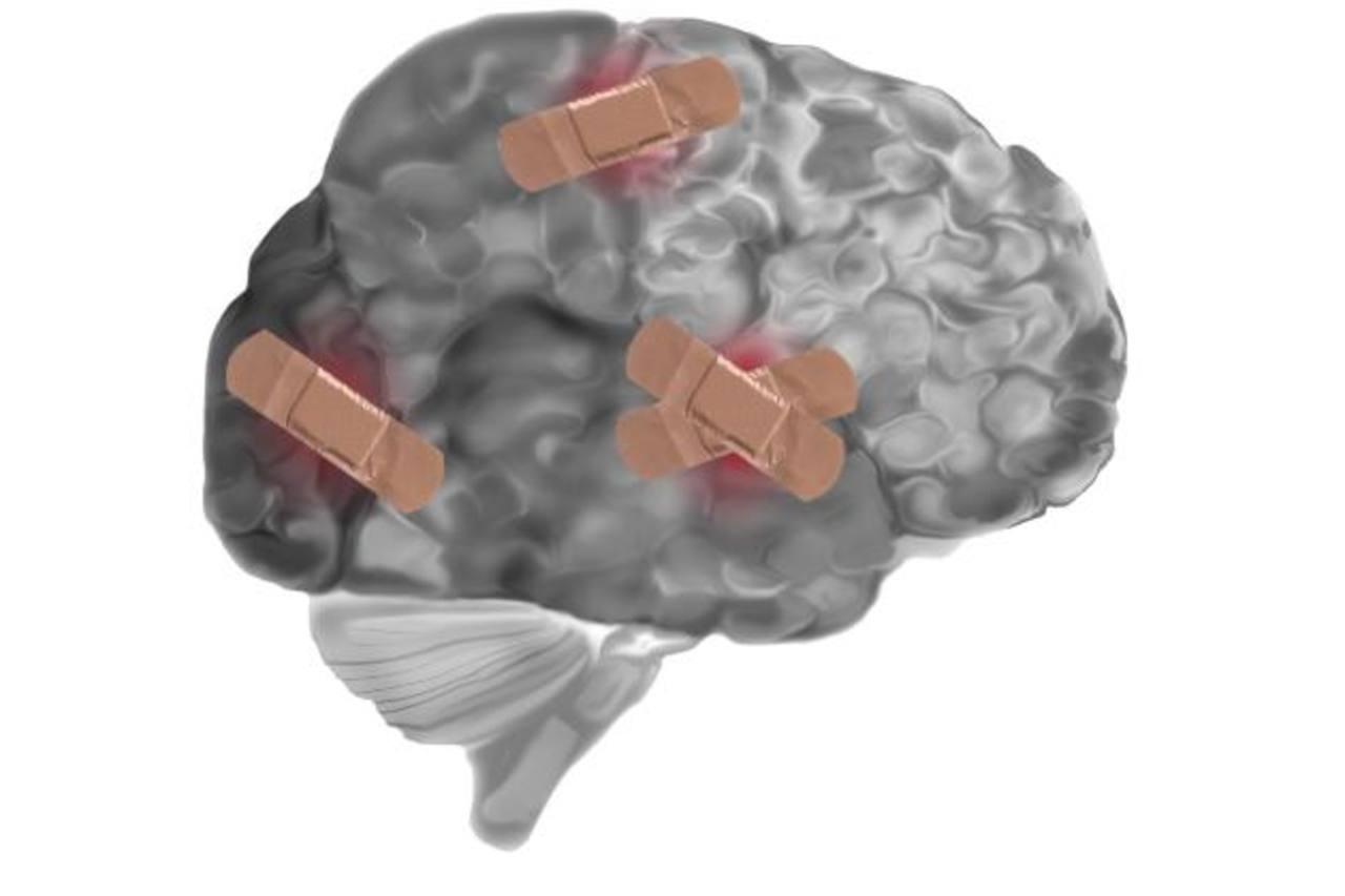 Alerta con lesiones cerebrales