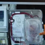 En la imagen, el doctor Kumud Dhital explica el procedimiento que ofrece nuevas esperanzas a miles de personas. Foto EDH Hasta hace poco, solo se usaban órganos vivos. Foto EDH