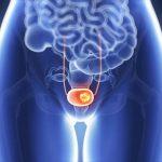 Al orientar a los pacientes con este cáncer sobre sus opciones terapéuticas, no puede ignorarse la CMT conservadora.