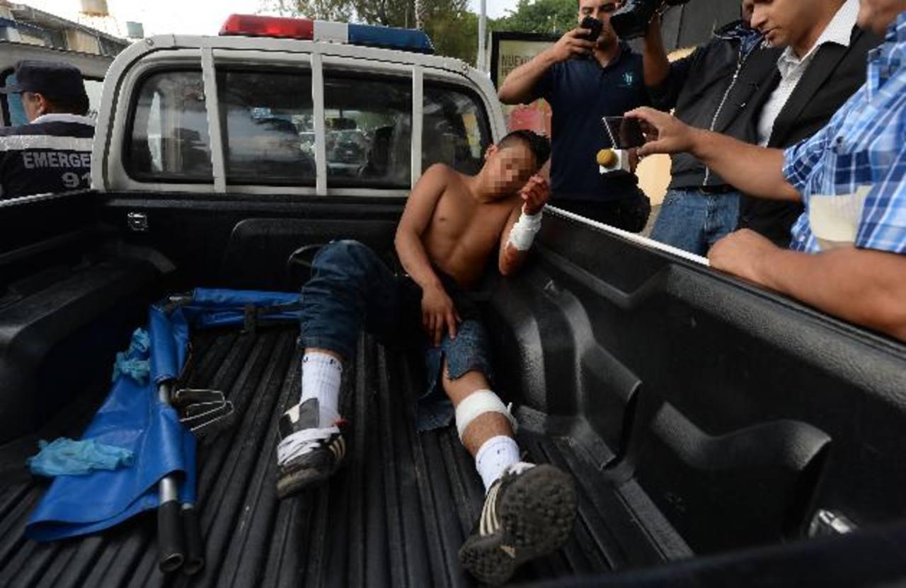 """Miguel A., de 16 años resultó herido de bala al intentar asaltar un """"carwash"""" en la 15a Avenida Norte. Foto EDH/ Jaime Anaya"""