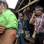 Campesinos muestran las heridas que sufrieron en enfrentamiento con la policía, durante una protesta en contra de las obras de construcción del Canal Interoceánico. foto edh / reuters