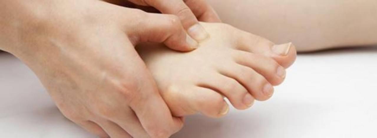 La gota es una forma de artritis más dolorosa. foto edh