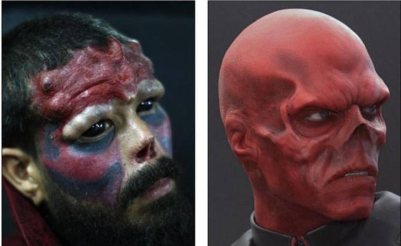 Se corta la nariz para parecerse a villano del Capitán América