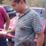 Francisco muestra las heridas que sufrió al ser atacado por un médico del Seguro Social de Soyapango. Foto EDH / Cortesía